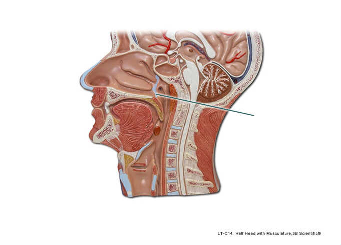 Solved pal models respiratory system lab practical pal models respiratory system lab practical question 3 ccuart Choice Image